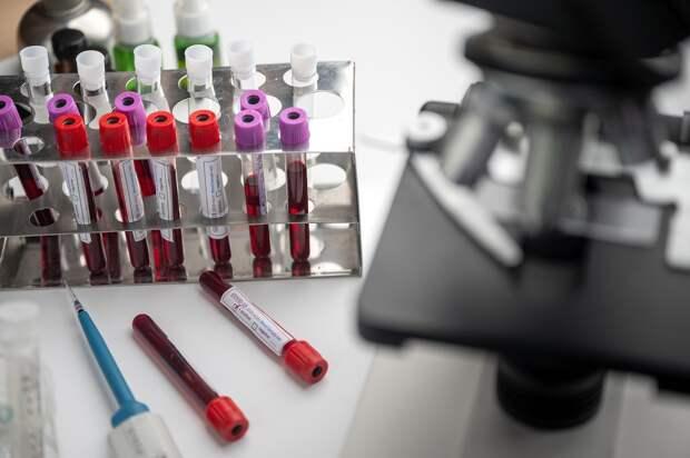 Российские ученые разрабатывают экспресс-анализатор коронавирусов