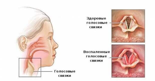 Воспаление голосовых связок на схеме