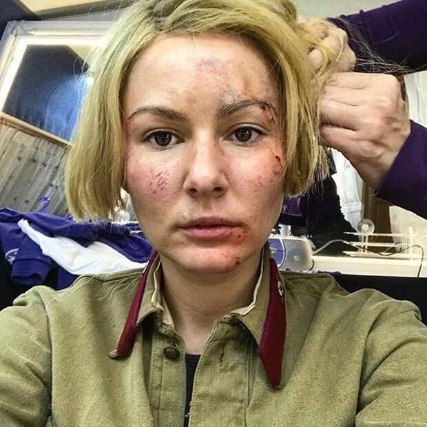 Мария Кожевникова напугала поклонников ужасным видом
