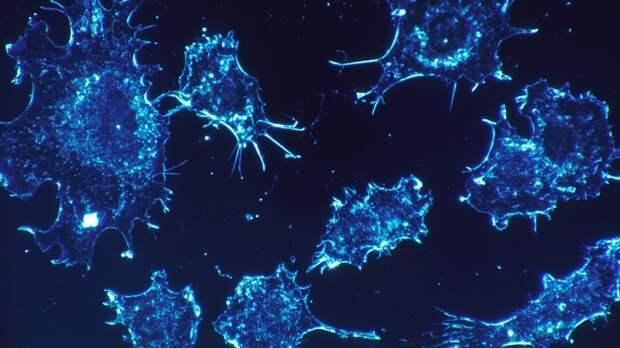 Врачи Mayo Clinic предупредили о безболезненных проявлениях рака