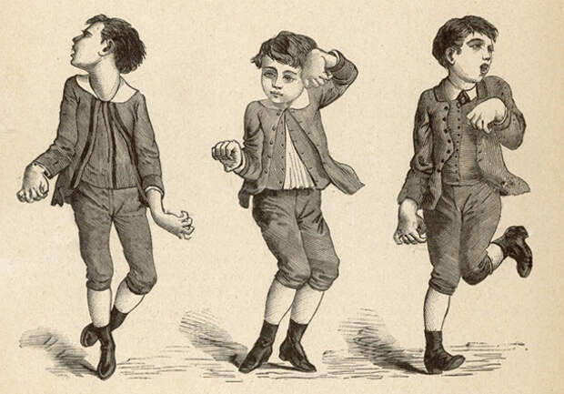 «Танцующая чума» Средневековья— смертельная эпидемия, оприроде которой спорят досих пор