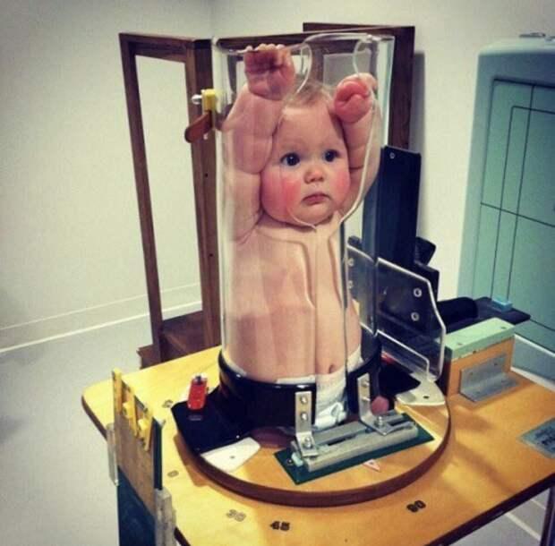 Интернет насмешили фото детей в медицинском чудо-устройстве для рентгена