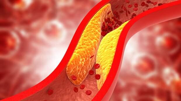 При_повышенном_уровне_холестерина