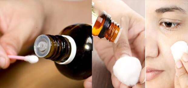 Это масло избавляет прыщей, морщин, перхоти, герпеса и любых инфекций! Вот что делать