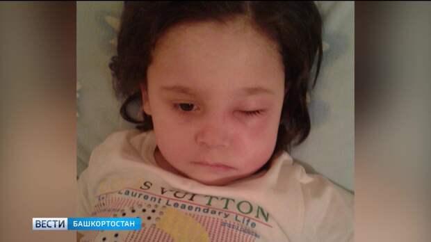 В Башкирии ребенку удалили половину челюсти после посещения стоматолога