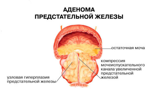 http://www.operabelno.ru/wp-content/uploads/2014/05/%D0%BF%D1%80%D0%B5%D0%B4%D1%81%D1%82%D0%B0%D1%82%D0%B5%D0%BB%D1%8C%D0%BD%D0%BE%D0%B9-%D0%B6%D0%B5%D0%BB%D0%B5%D0%B7%D1%8B.jpg