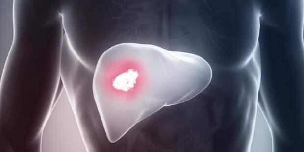 Главные признаки рака печени