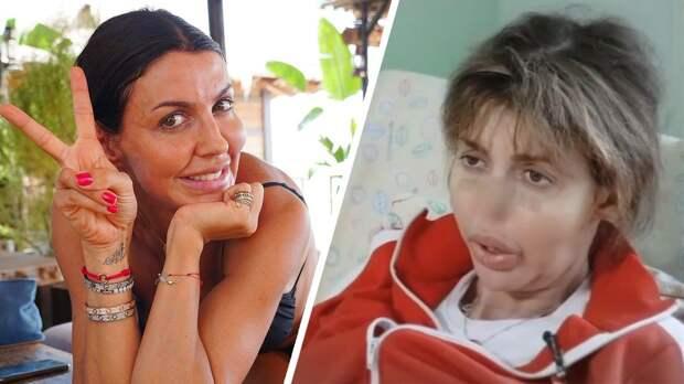 Что за ужасная болезнь у бывшей жены Аршавина. Она почти потеряла нос