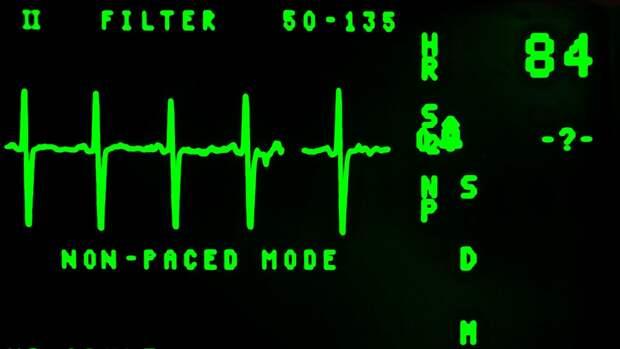 Российские ученые разработали датчики отслеживания здоровья с беспроводной зарядкой