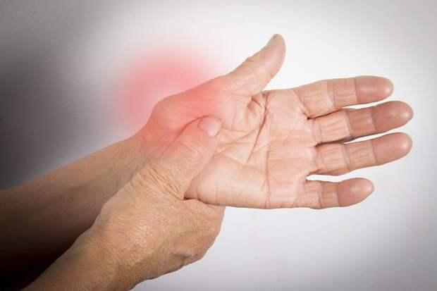 Ревматоидный артрит, можно ли его предотвратить и как лечить