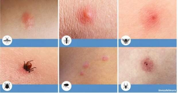 8 типов укусов насекомых, о которых вы просто обязаны знать!