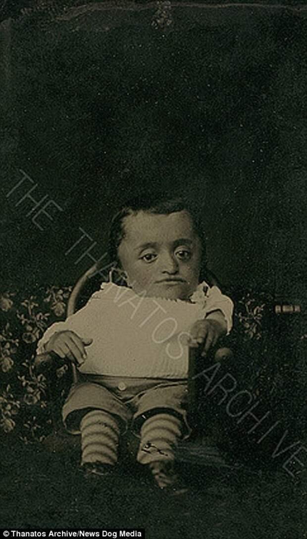 Ребенок с карликовостью, 1870-е годы деформация, люди