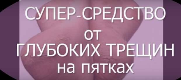 СУПЕР СРЕДСТВО против ТРЕЩИН на пятках в домашних условиях.