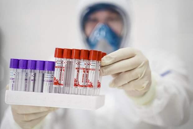 В России разработан быстрый тест, позволяющий определить коронавирус
