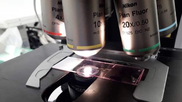 Раскрыто «паразитирующее» свойство раковых клеток