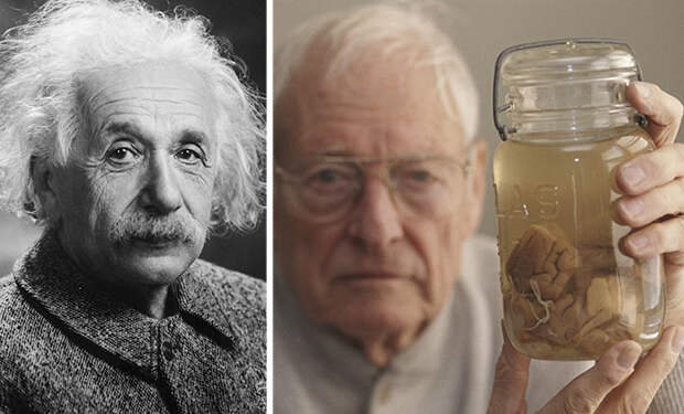 О том, как украли мозг Эйнштейна и что с ним потом происходило