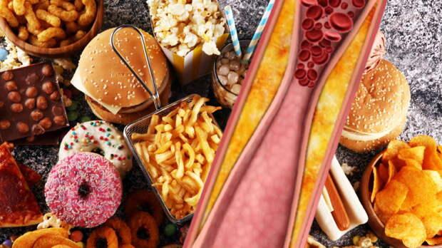 Опасные продукты для людей с высоким холестерином назвали специалисты