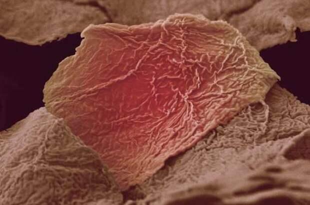6. Обгоревшие клетки кожи организм, под микроскопом