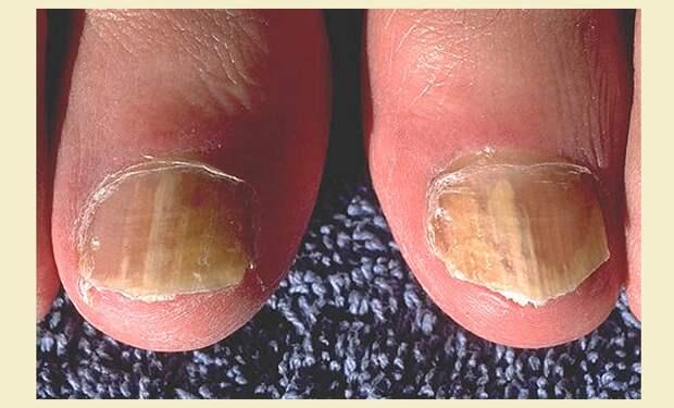 Стригущий лишай: грибок ногтей пальцев ног