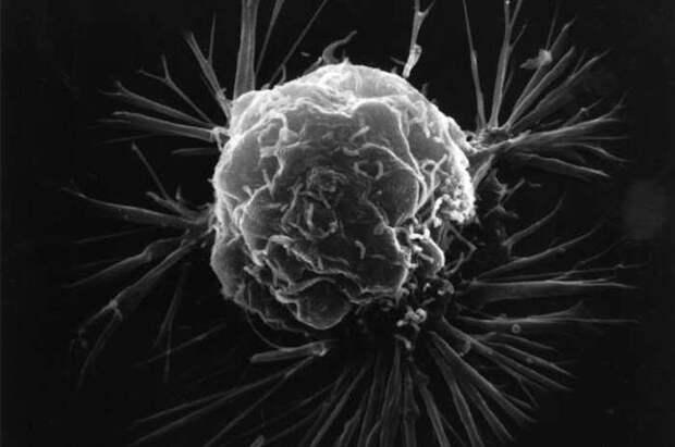 14. Рак молочной железы организм, под микроскопом