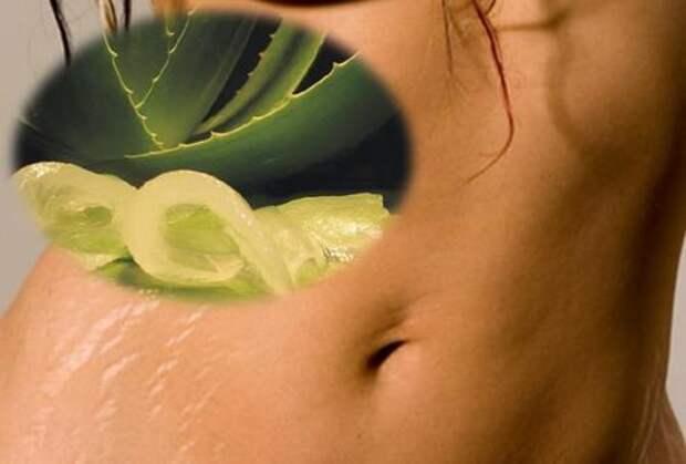 6 натуральных средств, которые помогут сделать растяжки незаметными