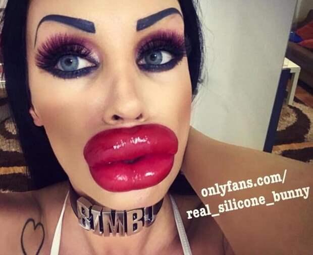 Ужасающие доказательства того, что увеличение губ — не самая разумная затея