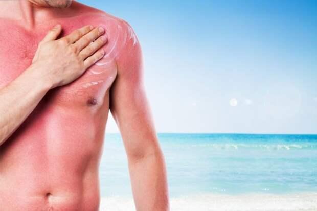 10 способов вылечить солнечные ожоги