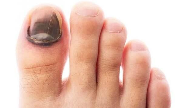 Изменение цвета ногтя нга пальце ноги говорит о болезни