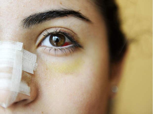 Культ красоты: почему все девочки-подростки в Ливане делают ринопластику