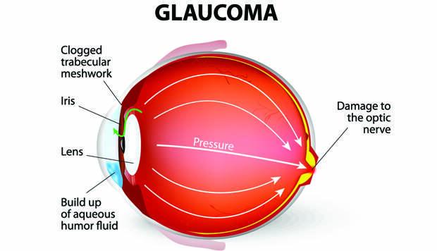 Глаукома: какие обследования нужны