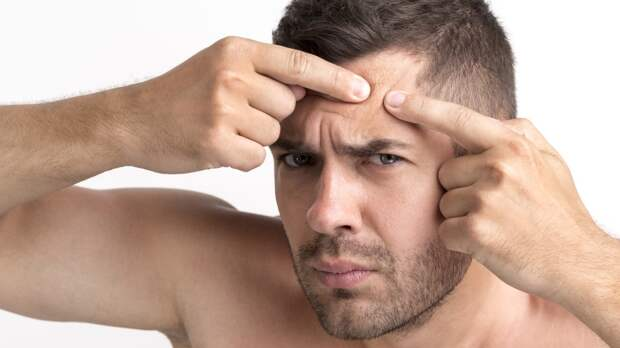 Дерматолог объяснила опасность самостоятельного выдавливания акне
