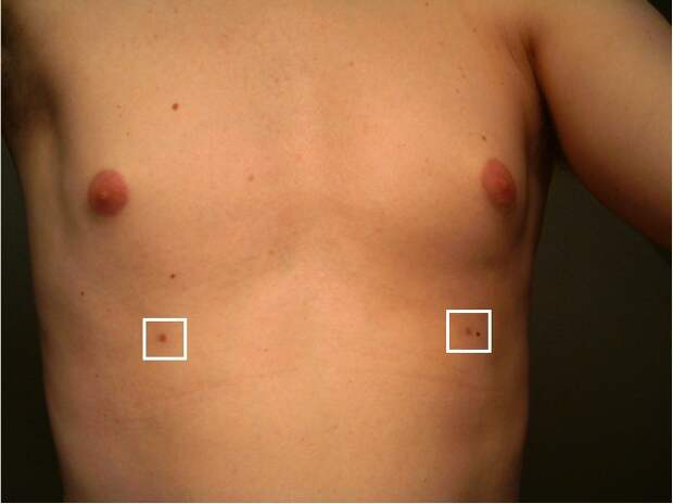 20060726_supernumerary_nipples-2