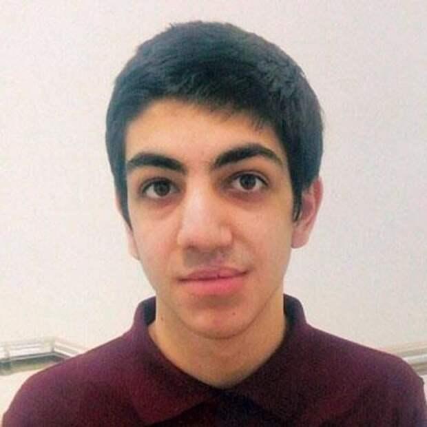 Ахмед Арсланалиев, 17 лет, рубцовая деформация губы и носа, недоразвитие челюсти, требуется ортодонтическое лечение, 163320₽