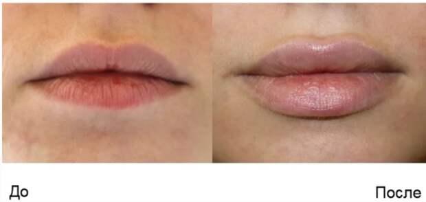 Вот к чему может привести неудачное увеличение губ. Пост для девушек