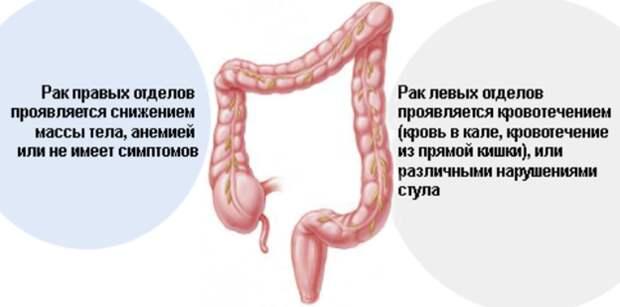 Советы по профилактике рака кишечника