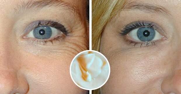 Домашний крем от морщин, который избавит вас от морщин даже если вам за 40.