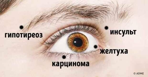 10 вещей, которые ваши глаза пытаются рассказать вам о вашем здоровье
