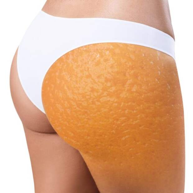 апельсиновая корка на женских бедрах