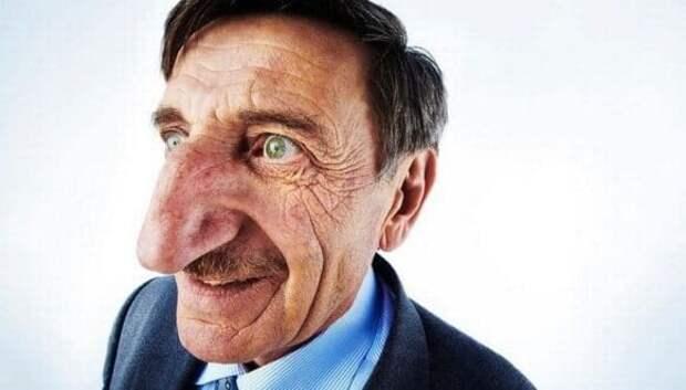 Буратино в реальной жизни: человек с самым длинным носом вмире