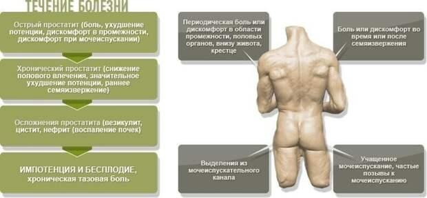 Это только первые симптомы простатита, которые свойственны каждому виду заболевания