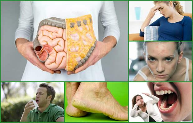 Как вывести токсины из организма без диет и лекарств