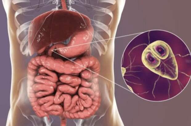Заболевание лямблиоз: что нужно знать о паразитах