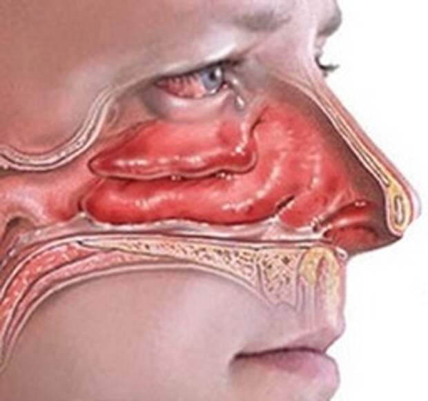 заложен нос что делать