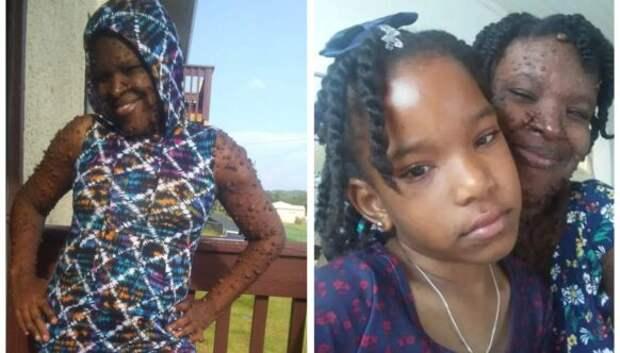 Американка, тело которой покрыто двумя сотнями опухолей, обрела уверенность в себе благодаря дочери