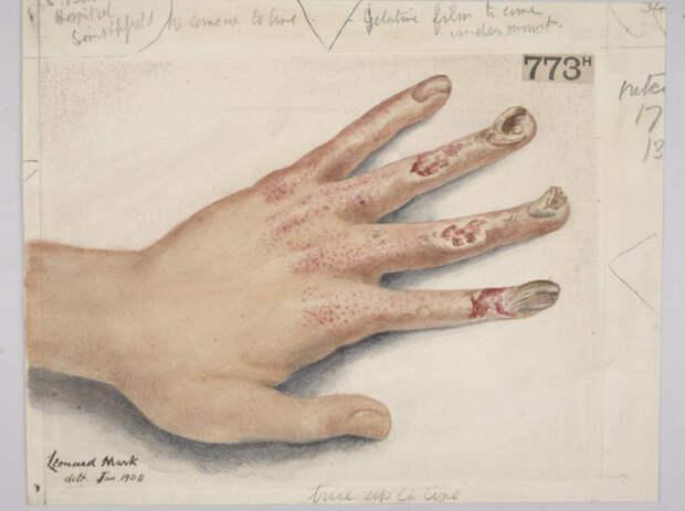 Хронические язвы пациента, который подвергался чрезмерному воздействию рентгеновских лучей. Акварель 1908 года. | Фото: wellcomeimages.org.