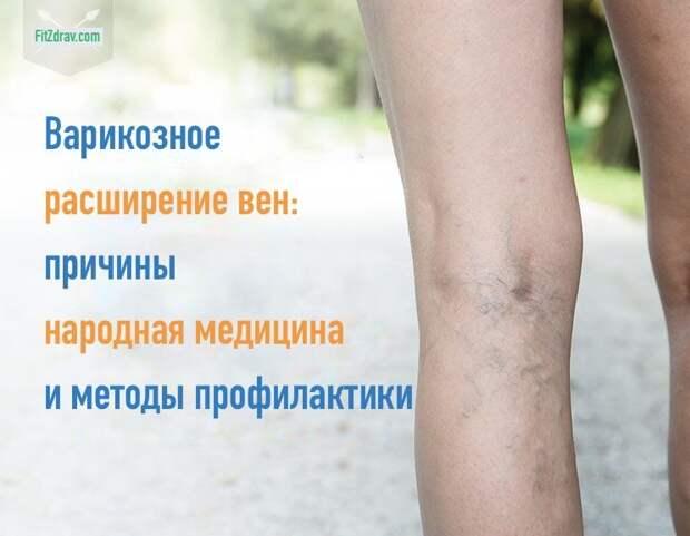 Варикозное расширение вен на ногах: причины возникновения, профилактика и лечение варикоза