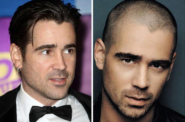 12 знаменитостей до и после того, как их побрили налысо