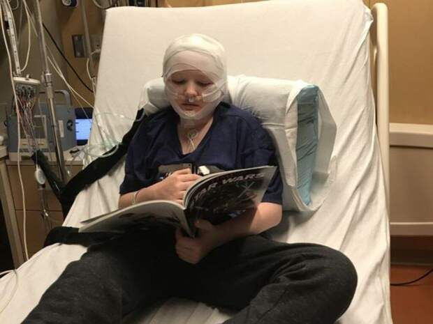 Окаменела кожа: в США ребенок заболел редкой болезнью