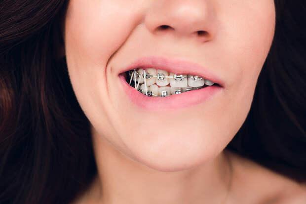 Ортодонт рассказала, кому нельзя ставить брекеты