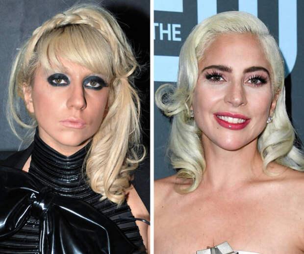 15 знаменитостей, которые больше всего изменились запоследнее десятилетие